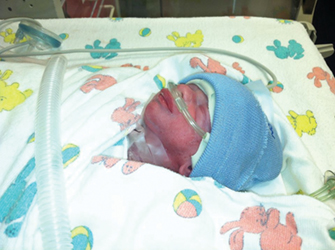 He weighed just 2 pounds 15 ounces.